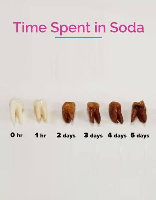 Teeth in soda acid